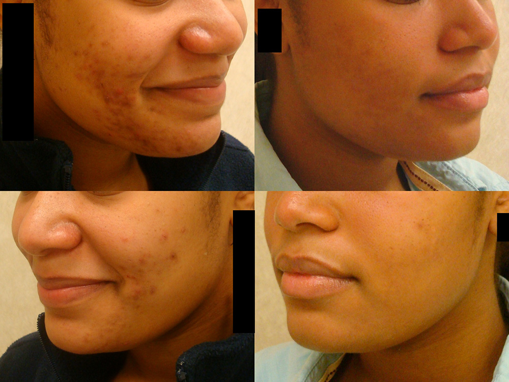 Acne-treatment-2