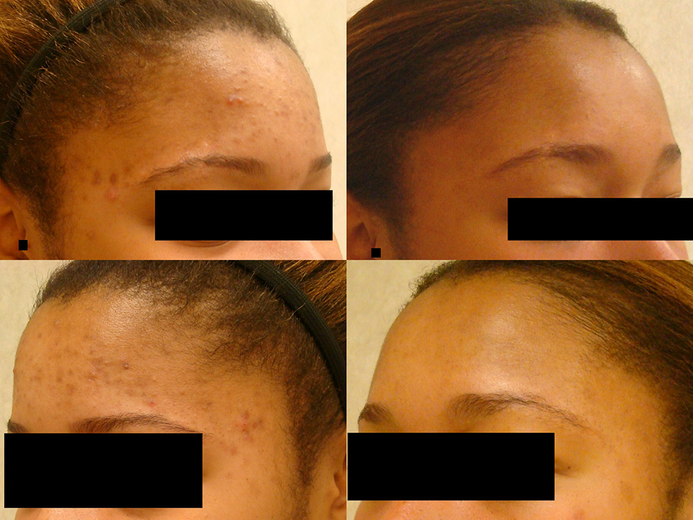 Before:  20 year old female with acne, cysts and blemishes (hyperpigmentation) -  After: Personalized acne regimen and complexion blending techniques restored the natural beauty of her skin tone and texture