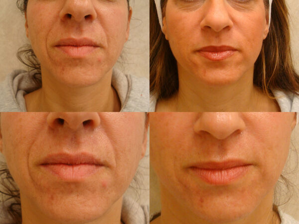 Juvederm Laugh Lines Before: Deep laugh lines that developed over the course of her lifetime After: Marked reduction in laugh lines revealing a more youthful appearance