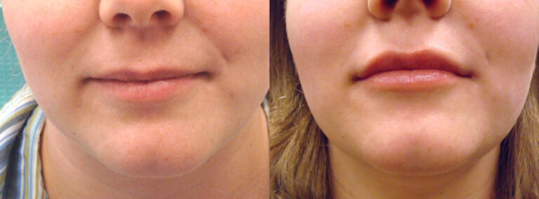 Juvederm Lips Before: 29 year old female with thin lips After: Fuller lips accentuating her natural contours