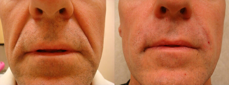 Radiesse - Before: 54 year old male with deep laugh lines After: Dramatic reduction of the laugh lines resulting in a much younger appearance