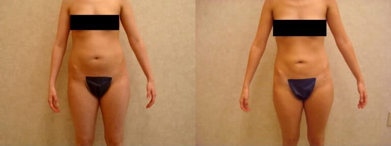 26 y/o female, 1 tx to abdomen