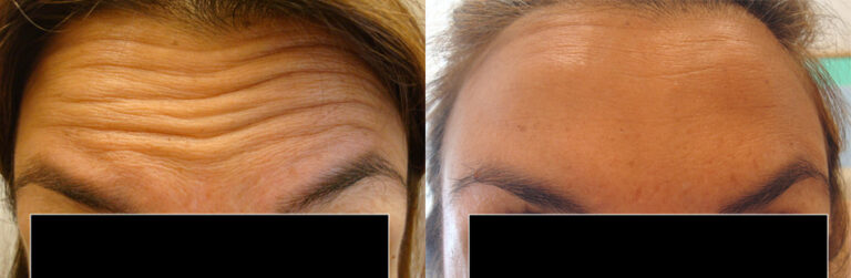 botox-upper-forehead